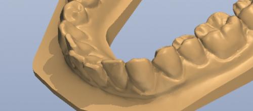 Ästhetikschiene bzw. Korrekturschiene für schiefe Zähne